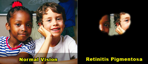 Retinitis Pigmentosa Inherited Diseases Causing Retinal