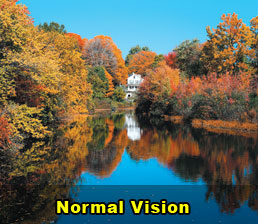 glaucoma macular degeneration cataract